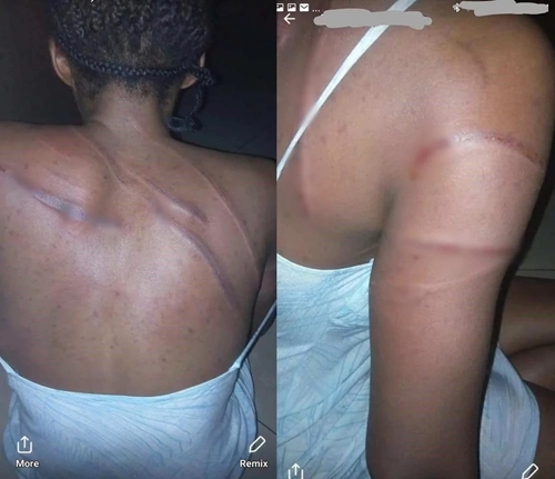 HEARTLESS! Man Battered Wife After She Advised Him To Quit Consumption Of Alcohol (Photos)